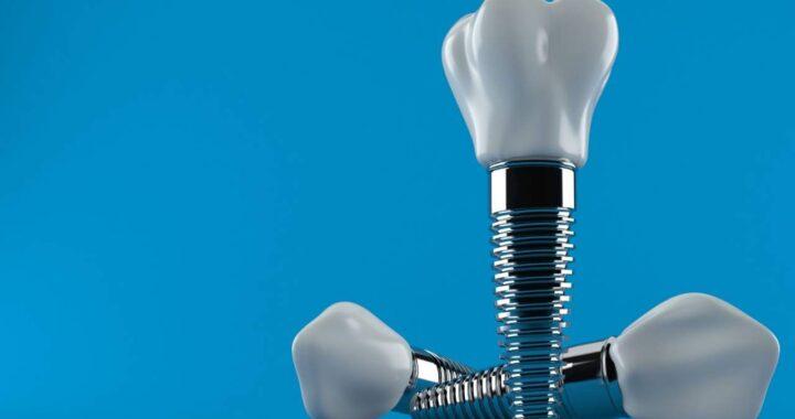 Conoce el precio de un implante dental en Sevilla