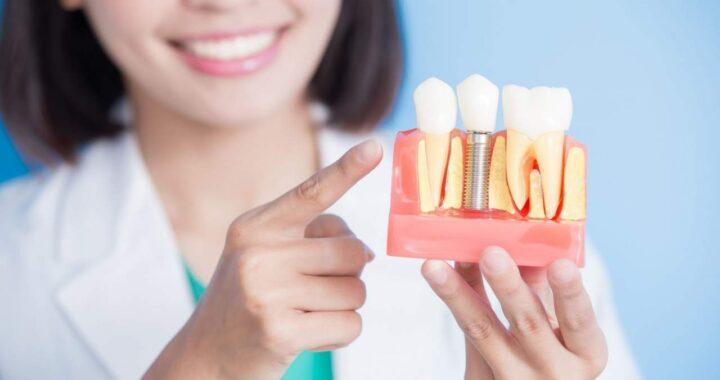 Sonríe una vez más, y cómete el mundo: Implante dental Sevilla