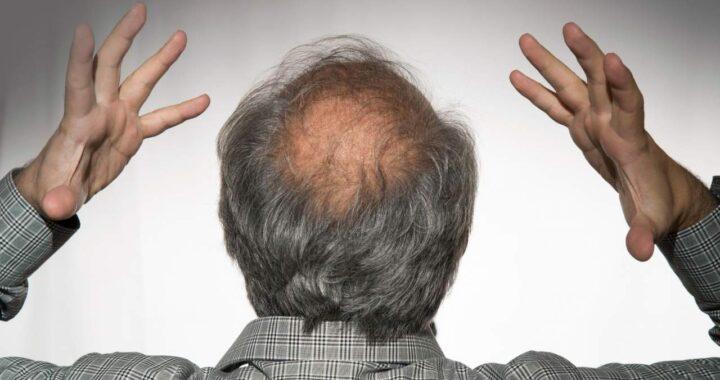Natura Estilo: ¿Cómo prevenir alopecia androgenética?