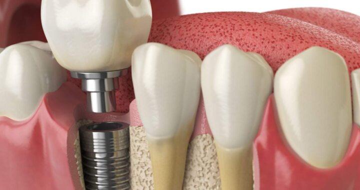 ¿Los implantes duran para siempre?¿Qué cuidados necesitan? Helident Training Center