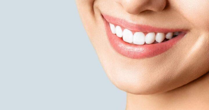 Curso de blanqueamiento dental de la mano de Helident Training Center