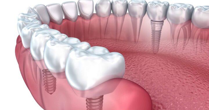 Implante dental de titanio en la Clínica de Odontología Artydents de Madrid por solo 199€